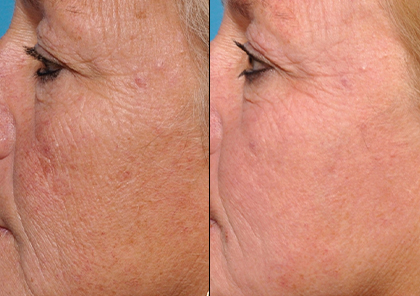 Halo Laser Pro by Dr Jane Lucas